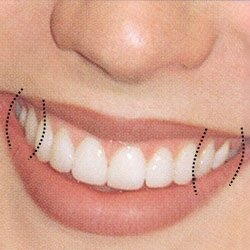 Специалисты ортодонты уверены - правильный прикус - это...
