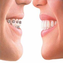 Ортодонтия.
