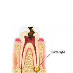 Киста Не спешите удалять зуб.