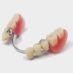 Какое бывает протезирование зубов.
