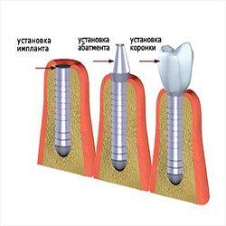 Имплантация зубов.