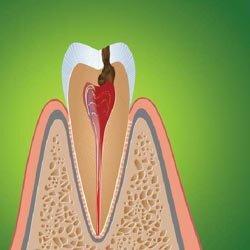 Лечение кариеса и пульпита зубов.