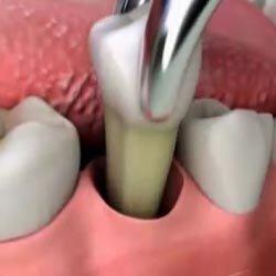 Удаление зубов.