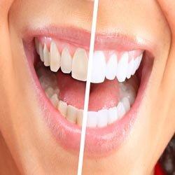Технология отбеливания зубов.