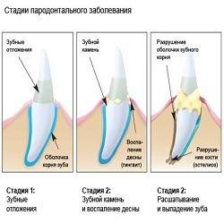 Клинический аспект воспалительных изменений периодонта.