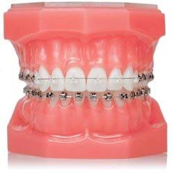 Что такое ортодонтия.